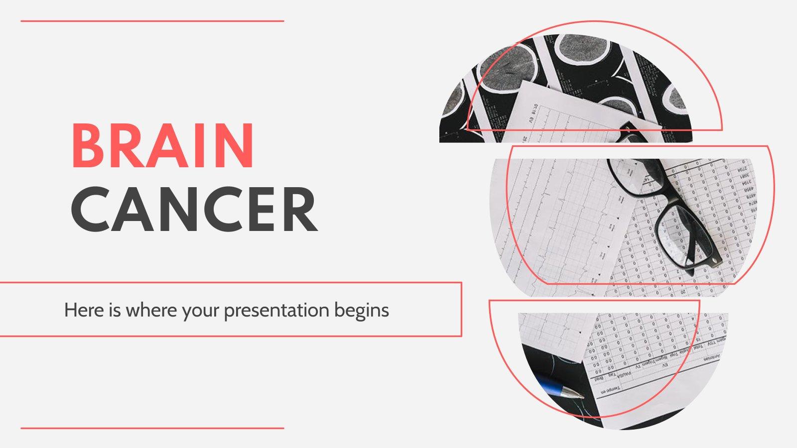 Cancer du cerveau : Modèles de présentation