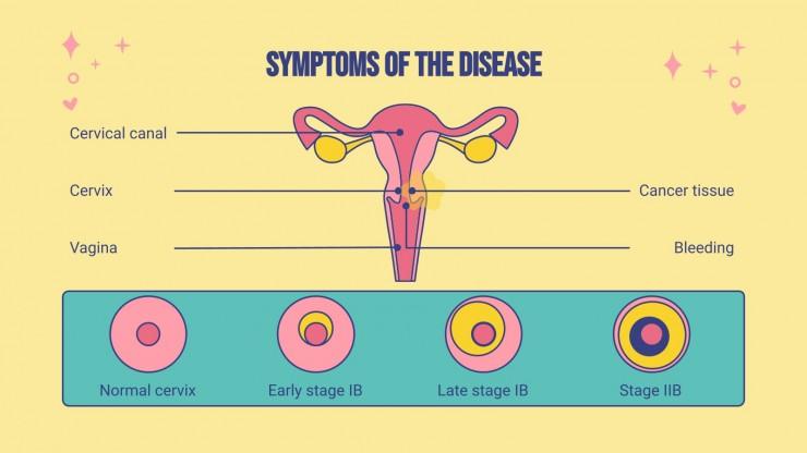Modelo de apresentação Câncer do colo do útero