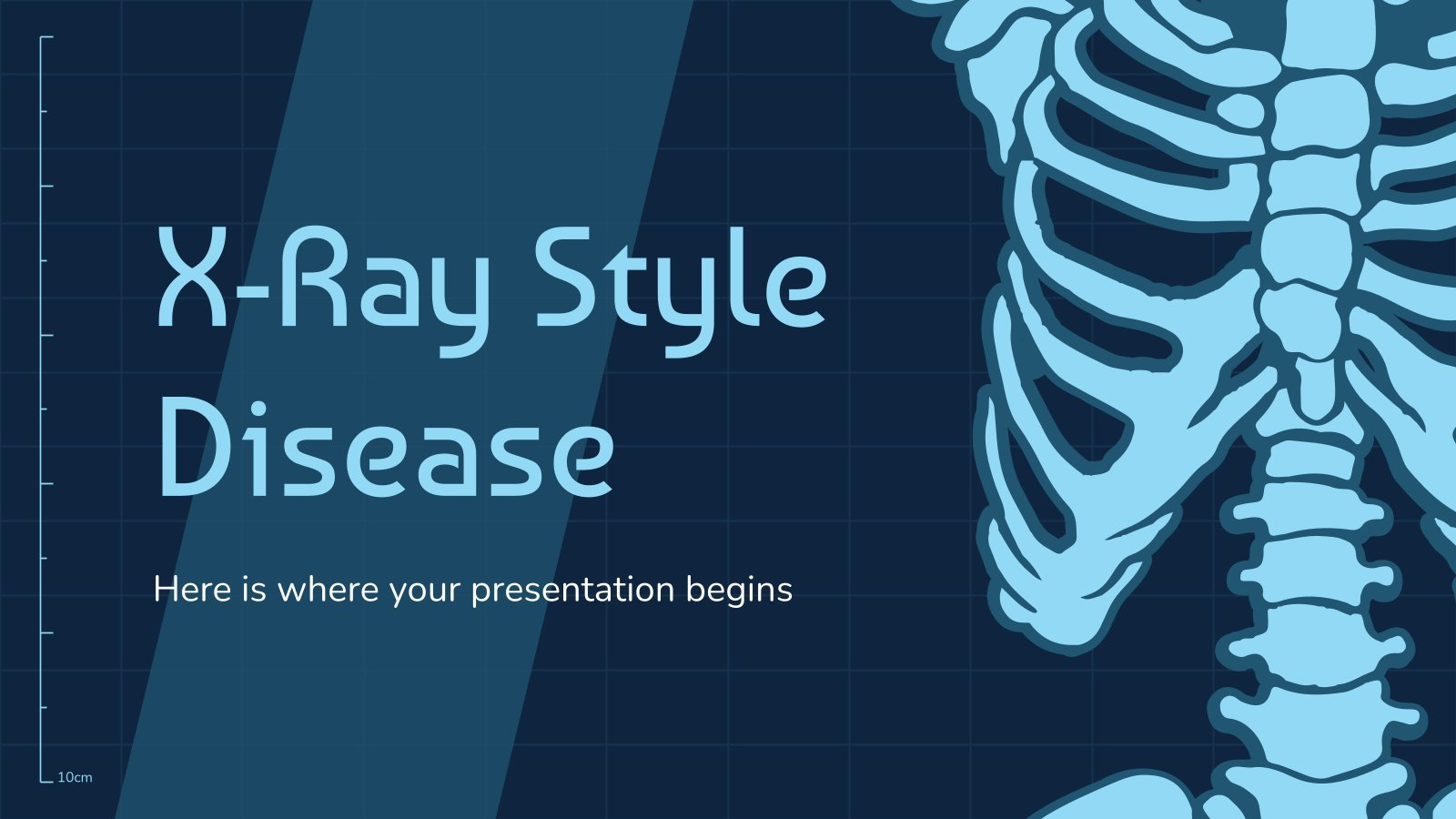 X-Ray Style Disease presentation template